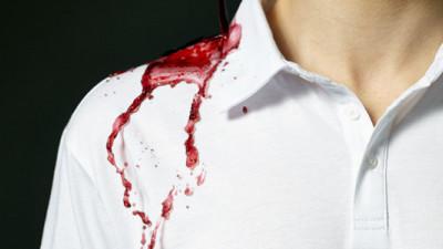 Could Nanotechnology Dramatically Reduce Clothing's Environmental Impact?